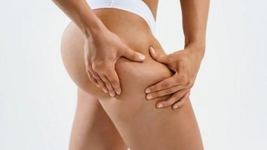 Cellulite: quali sono i rimedi?