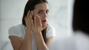 Macchie sulla pelle del viso: quali sono i rimedi?